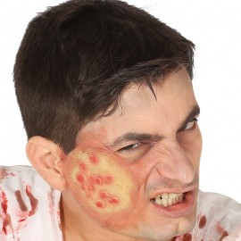 Cicatriz Ampollas Látex