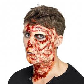 Quemadura Protésica Facial